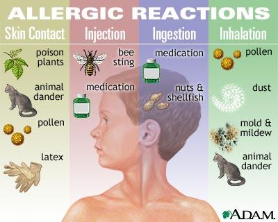 AllergyChart